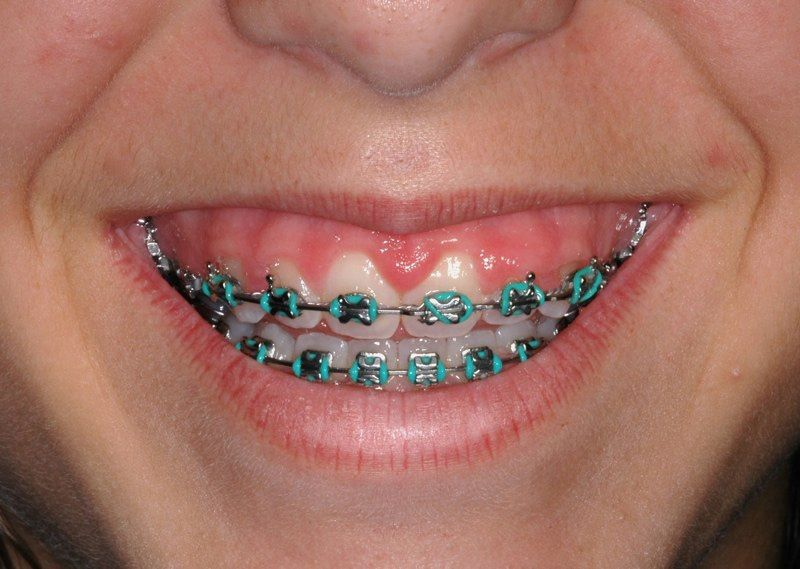 Stubby teeth with braces before aesthetic gum recontouring