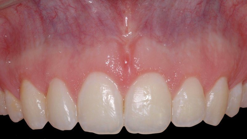 Smile after aesthetic gum recontouring