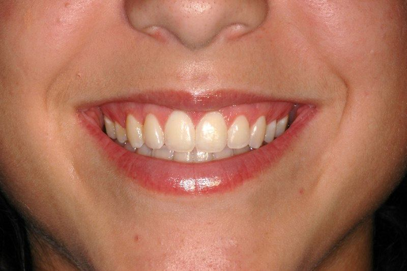 Full smile after aesthetic gum recontouring