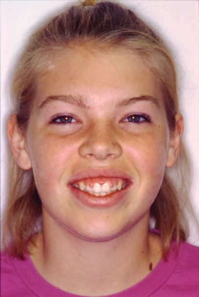 Young patient smiling before aesthetic gum recontouring