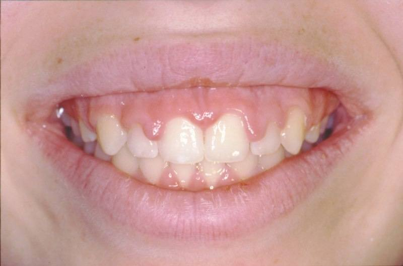 Uneven smile line before aesthetic gum recontouring