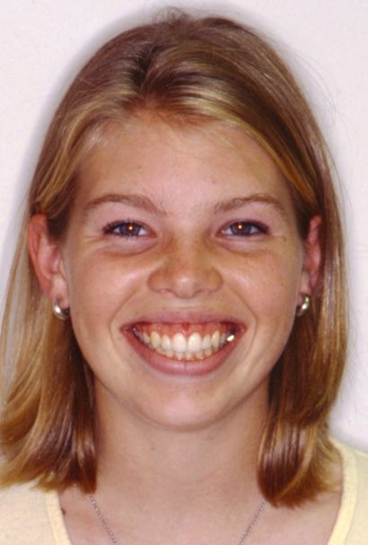 Patient smiling after Aesthetic gum recontouring