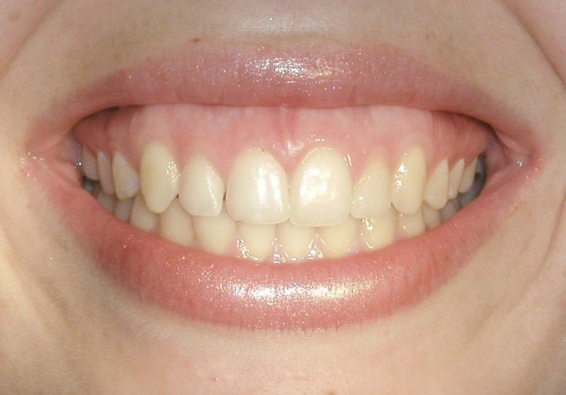 Beautiful smile five years after aesthetic gum recontouring