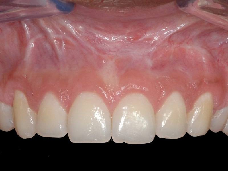 Beautiful smile after aesthetic gum recontouring