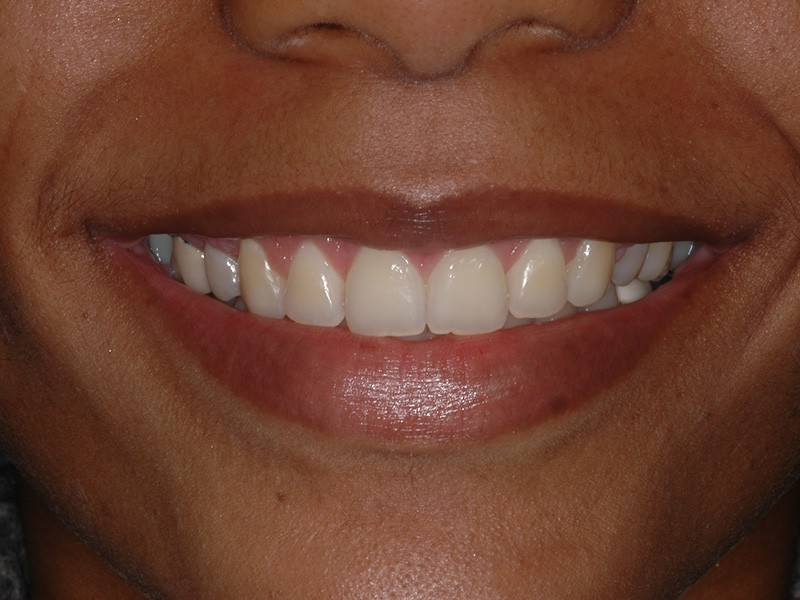 Closeup of patient's healthy smile after aesthetic gum recontouring