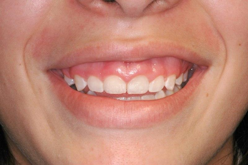 Closeup of smile stubby teeth and uneven gum line