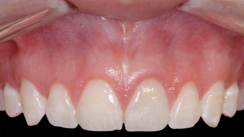 Closeup of smile after aesthetic gum recontouring