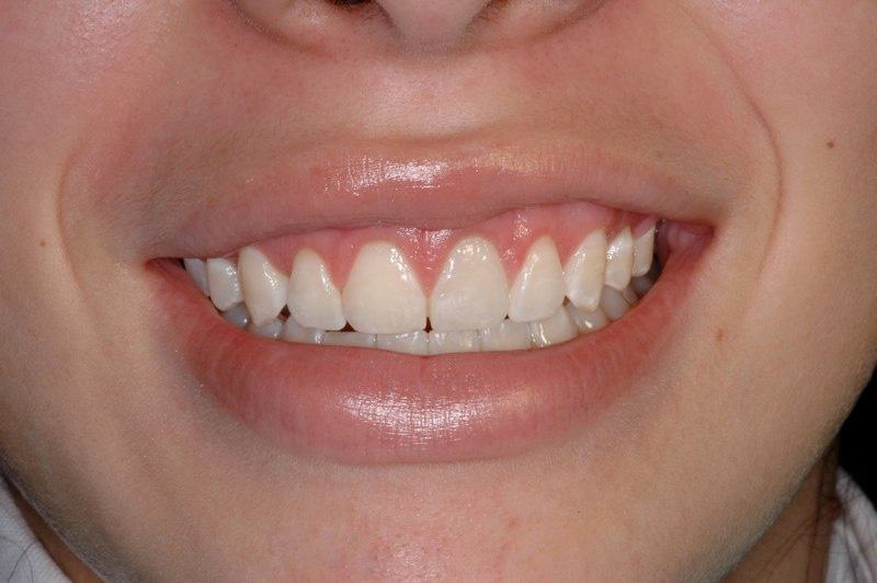 Patient's smile after aesthetic gum recontouring