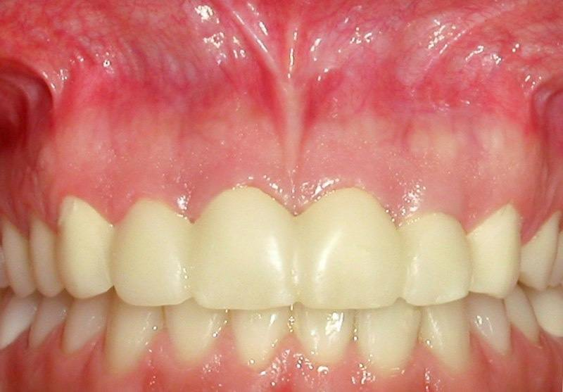 Closeup of smile in need of aesthetic gum recontouring