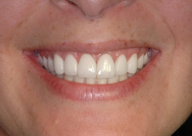 Gorgeous smile after aesthetic gum recontouring