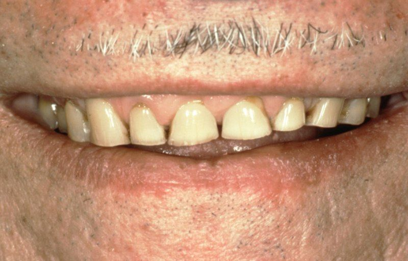 Stubby damaged teeth before aesthetic gum recontouring