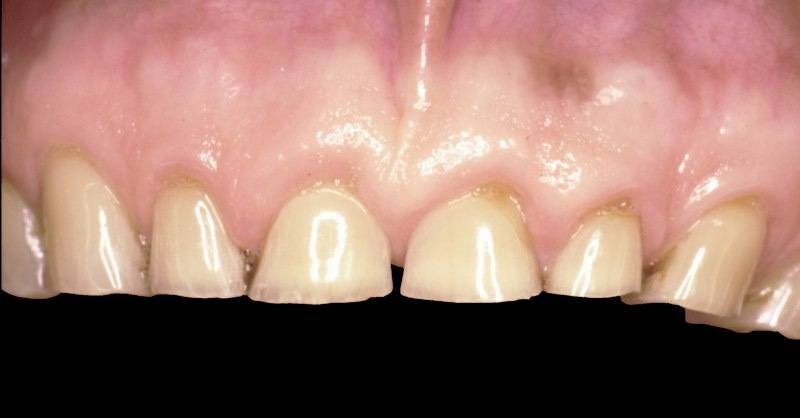 Top row of teeth after severe wear