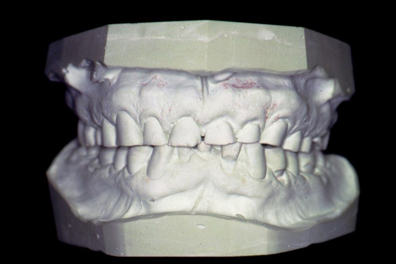 Model of smile before treatment