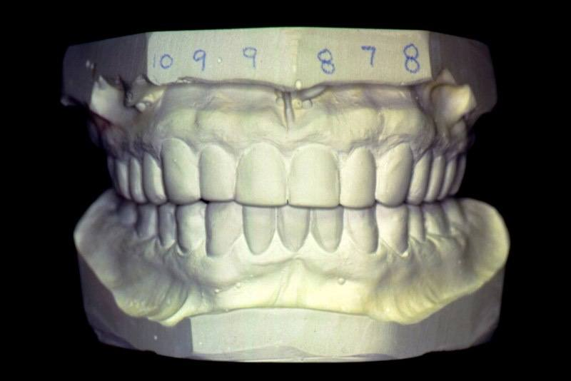 Model of smile after treatment