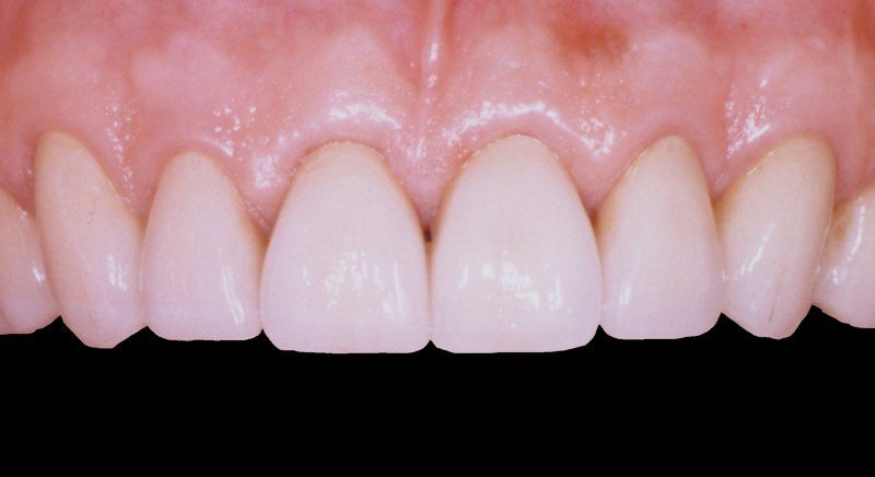 Closeup of smile after aesthetic gum recontouring and dental crown restoratoin