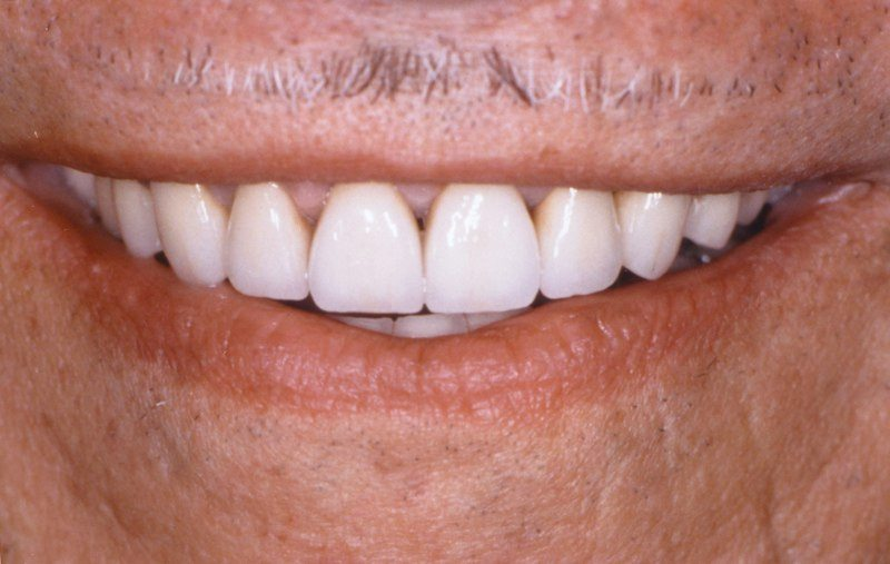 Closeup of smile after aesthetic gum recontouring and dental crown resotration