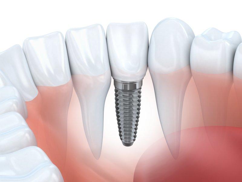 Diagram of a dental implant in San Antonio